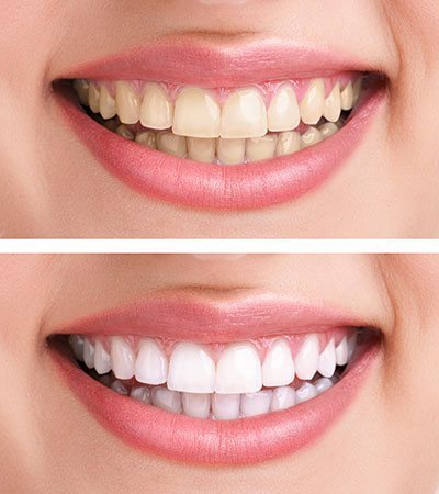 Teeth Whitening in Provo, UT