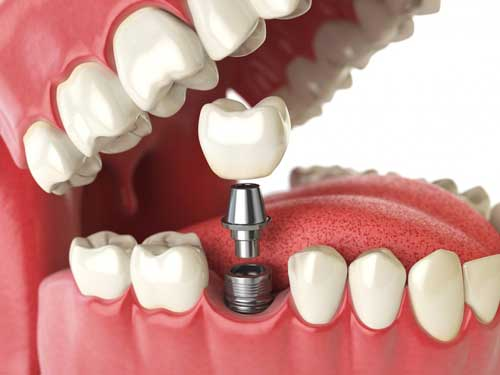 Dental Implant provider in Provo near Springville, UT