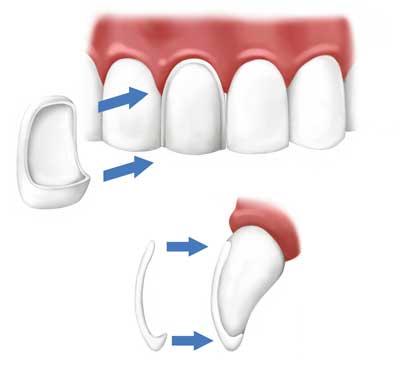 Cosmetic Dentistry with Dental Veneers in Provo Utah
